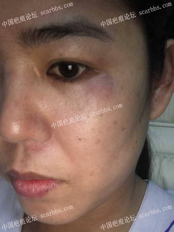 面部挫伤18天,色沉了,应怎样祛疤72-疤痕体质图片_疤痕疙瘩图片-中国疤痕论坛