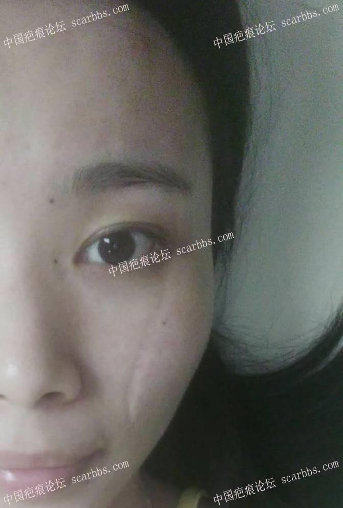 手术切除面部凹陷疤痕术后恢复过程分享,给大家一个借鉴54-疤痕体质图片_疤痕疙瘩图片-中国疤痕论坛