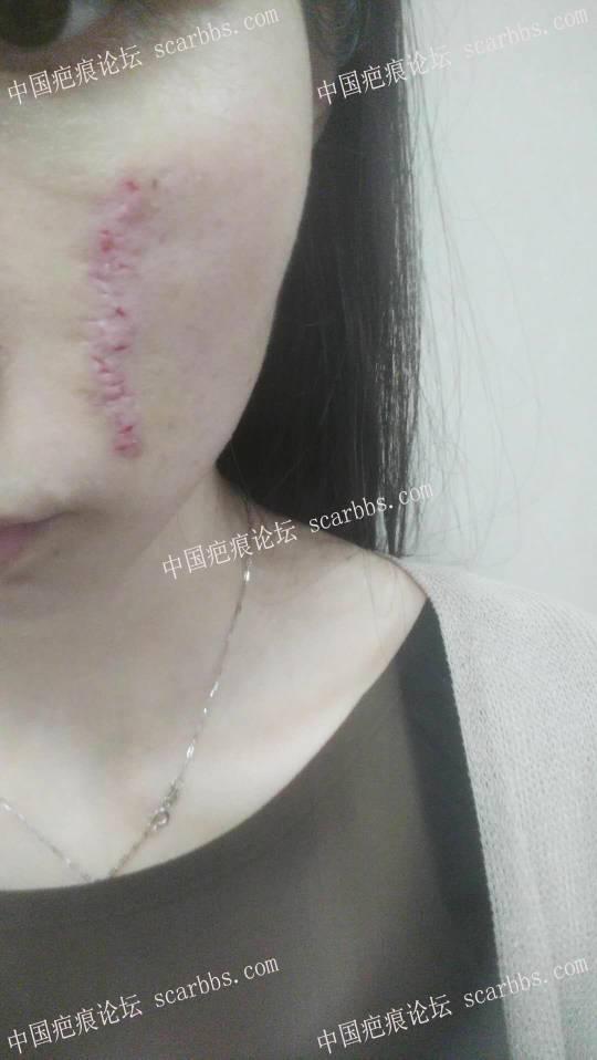 手术切除面部凹陷疤痕术后恢复过程分享,给大家一个借鉴57-疤痕体质图片_疤痕疙瘩图片-中国疤痕论坛