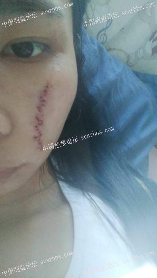 手术切除面部凹陷疤痕术后恢复过程分享,给大家一个借鉴41-疤痕体质图片_疤痕疙瘩图片-中国疤痕论坛