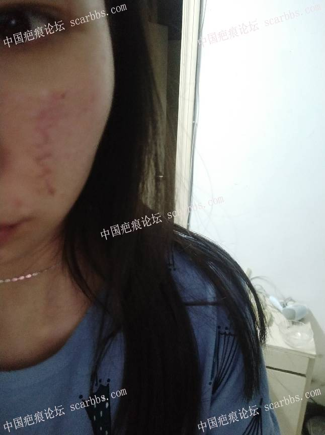 手术切除面部凹陷疤痕术后恢复过程分享,给大家一个借鉴86-疤痕体质图片_疤痕疙瘩图片-中国疤痕论坛