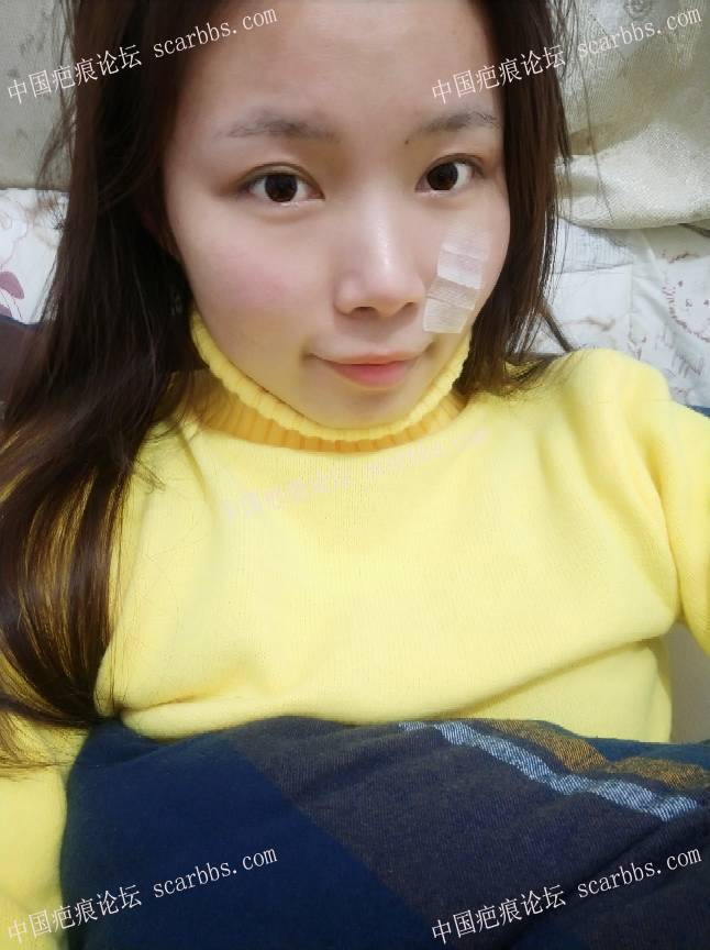 手术切除面部凹陷疤痕术后恢复过程分享,给大家一个借鉴34-疤痕体质图片_疤痕疙瘩图片-中国疤痕论坛