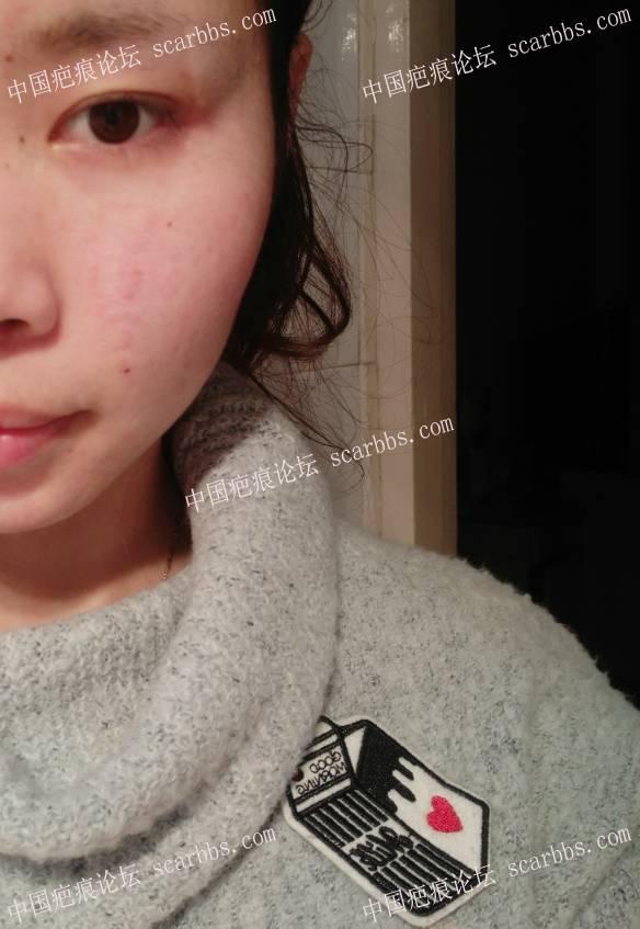 手术切除面部凹陷疤痕术后恢复过程分享,给大家一个借鉴62-疤痕体质图片_疤痕疙瘩图片-中国疤痕论坛