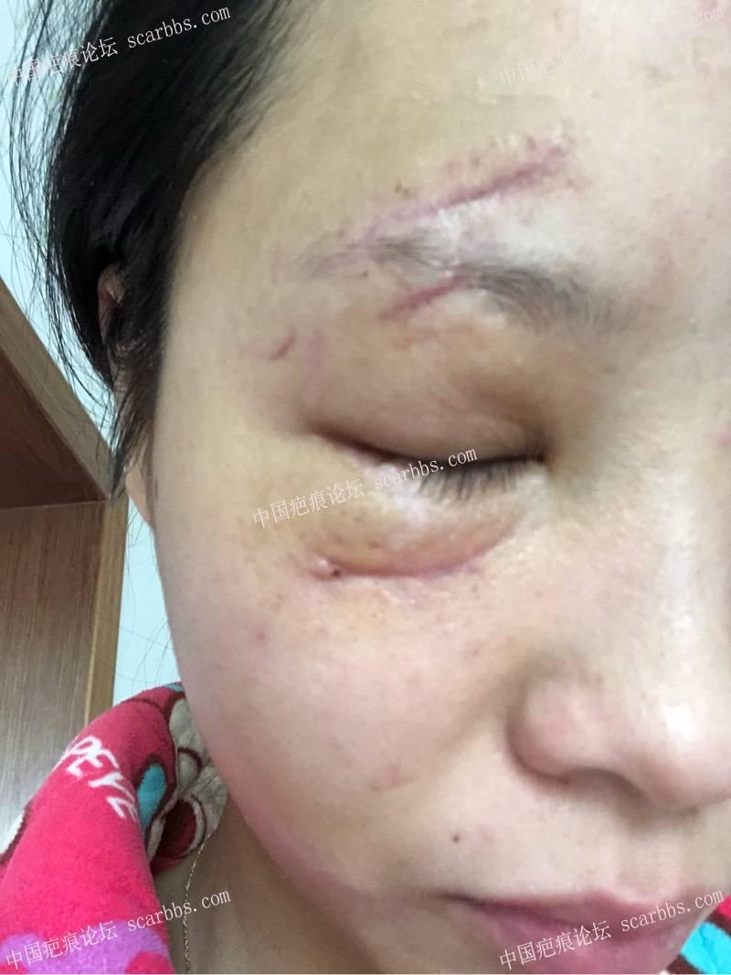 脸部摔伤伤疤愈合后多久去医院修复比较好73-疤痕体质图片_疤痕疙瘩图片-中国疤痕论坛
