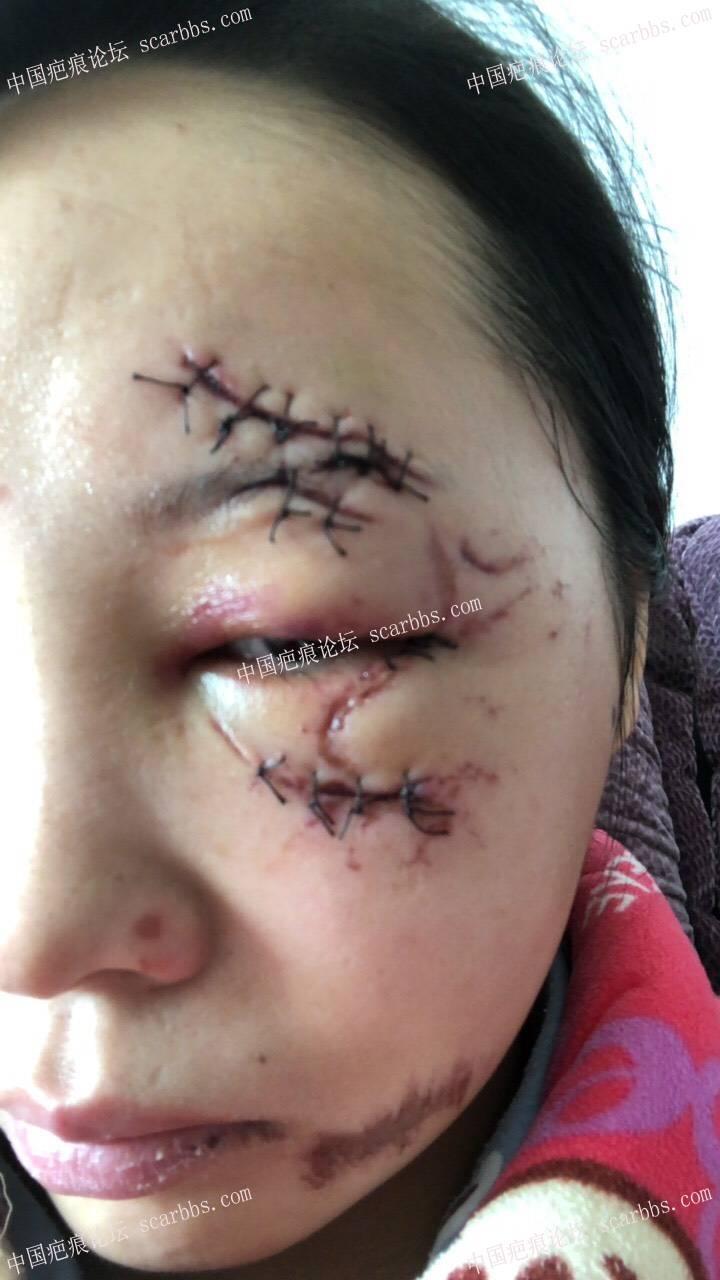 脸部摔伤伤疤愈合后多久去医院修复比较好15-疤痕体质图片_疤痕疙瘩图片-中国疤痕论坛