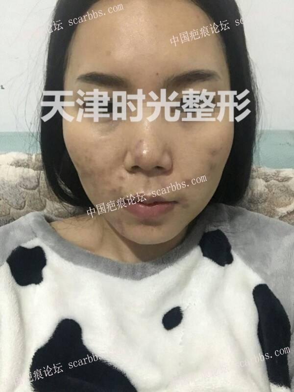 痘坑(疤痕)切缝对比效果图78-疤痕体质图片_疤痕疙瘩图片-中国疤痕论坛