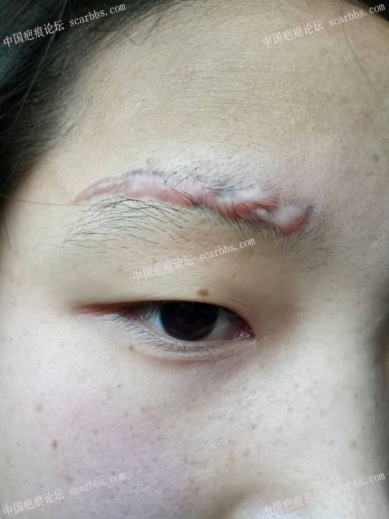 激光洗眉留疤增生17-疤痕体质图片_疤痕疙瘩图片-中国疤痕论坛