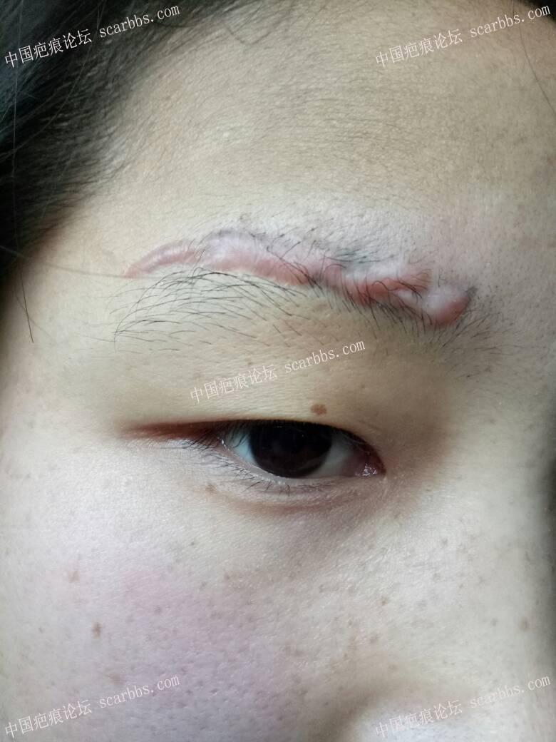 激光洗眉留疤增生96-疤痕体质图片_疤痕疙瘩图片-中国疤痕论坛