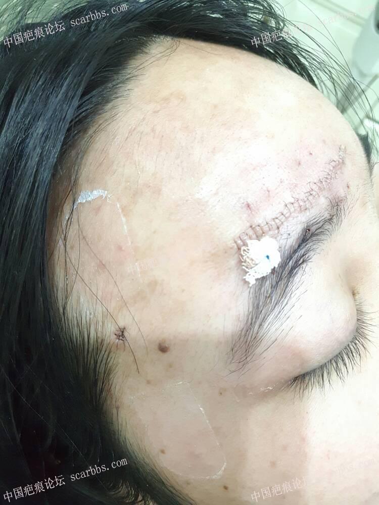 额头白色凹陷疤痕切除79-疤痕体质图片_疤痕疙瘩图片-中国疤痕论坛