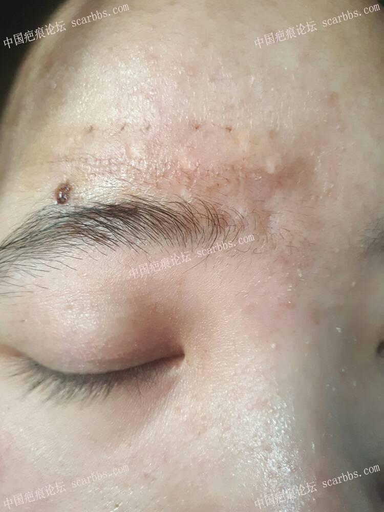 额头白色凹陷疤痕切除58-疤痕体质图片_疤痕疙瘩图片-中国疤痕论坛