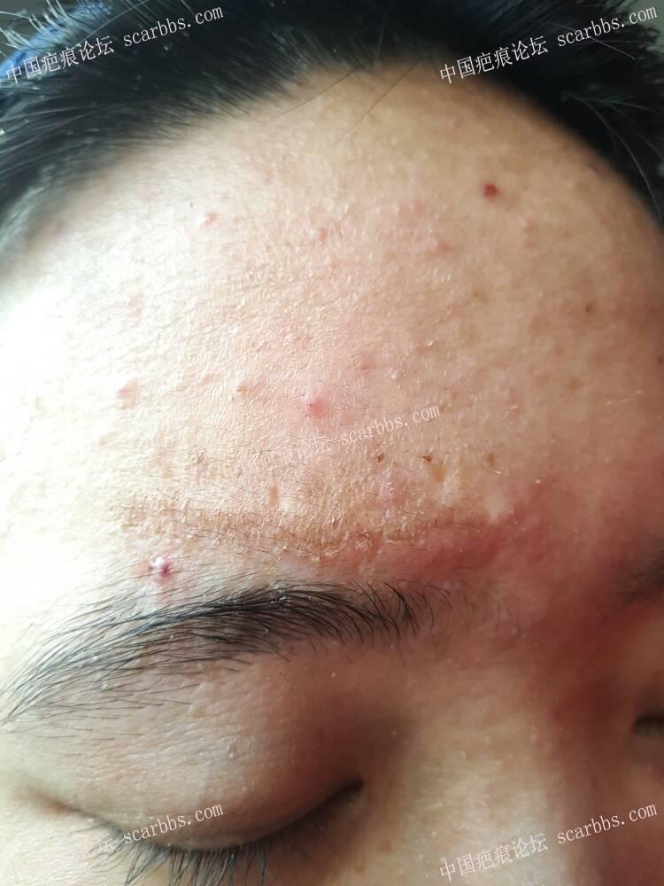 额头白色凹陷疤痕切除14-疤痕体质图片_疤痕疙瘩图片-中国疤痕论坛