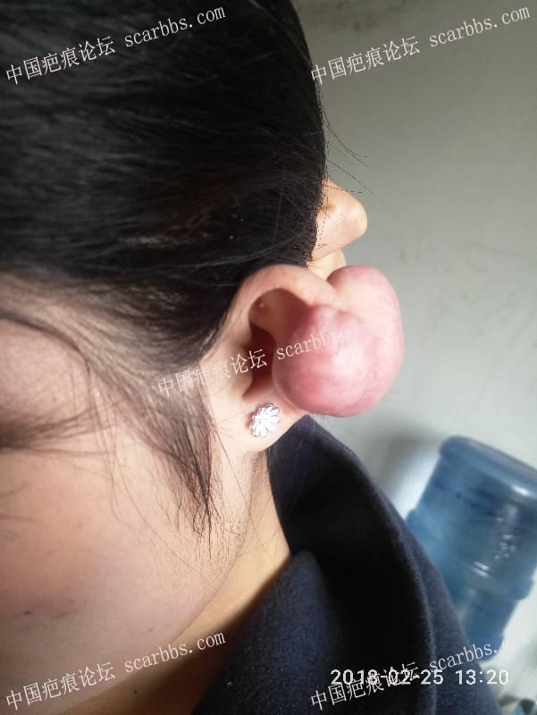 打耳洞引起的疤痕增生30-疤痕体质图片_疤痕疙瘩图片-中国疤痕论坛