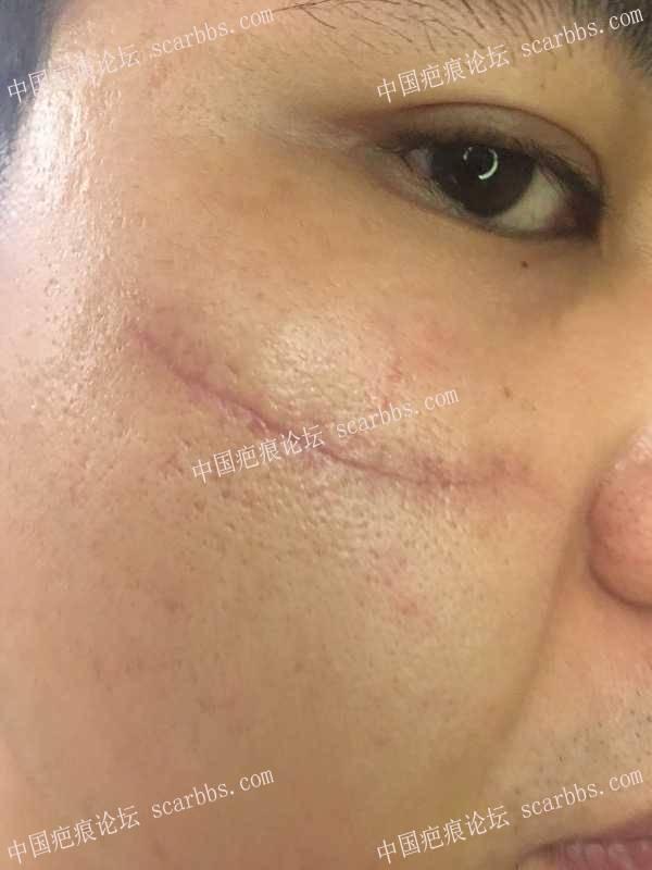 脸部眼镜割伤,伤后第一个月。47-疤痕体质图片_疤痕疙瘩图片-中国疤痕论坛