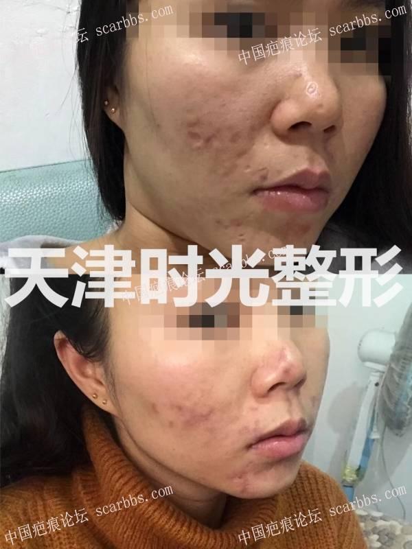 痘坑(疤痕)切缝对比效果图9-疤痕体质图片_疤痕疙瘩图片-中国疤痕论坛