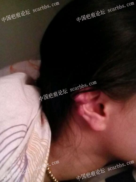 2018的愿望,去掉耳廓疤痕疙瘩,希望有人与我一起交流77-疤痕体质图片_疤痕疙瘩图片-中国疤痕论坛