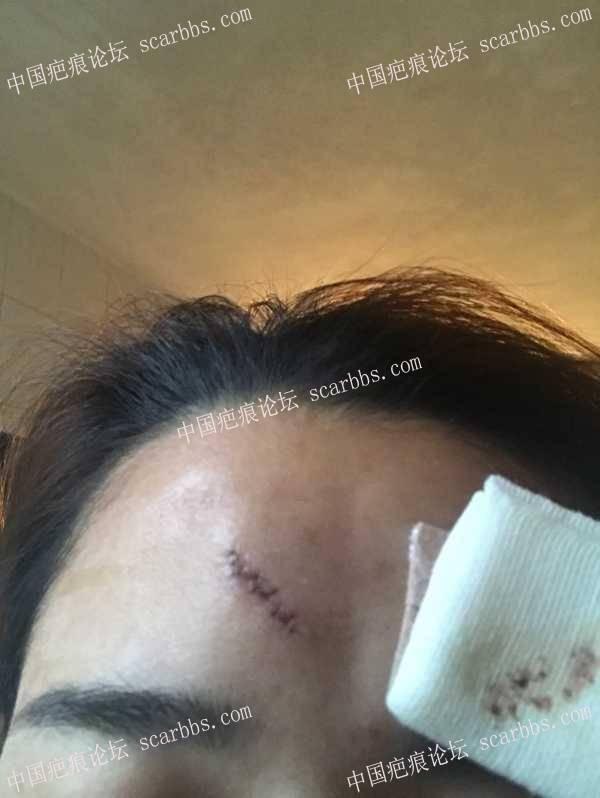 额头凹陷疤痕,3月16号找陈立彬医生做的切除手术52-疤痕体质图片_疤痕疙瘩图片-中国疤痕论坛