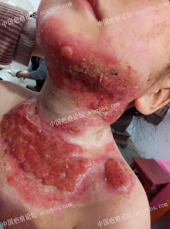 李高令2018年接治已接植皮令孩子(陕西汉中)68-疤痕体质图片_疤痕疙瘩图片-中国疤痕论坛