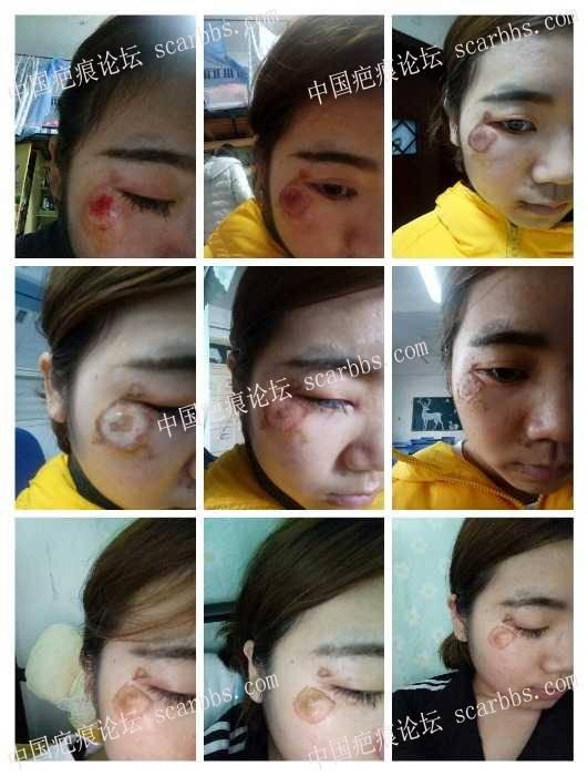 脸部擦伤两周了,我该怎么办?8-疤痕体质图片_疤痕疙瘩图片-中国疤痕论坛