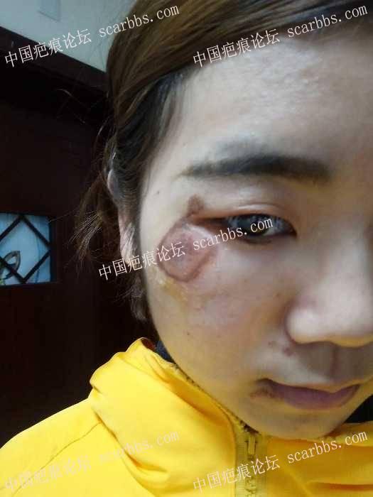脸部擦伤两周了,我该怎么办?2-疤痕体质图片_疤痕疙瘩图片-中国疤痕论坛