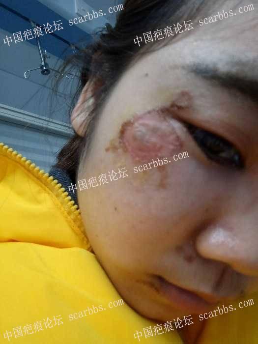 脸部擦伤两周了,我该怎么办?22-疤痕体质图片_疤痕疙瘩图片-中国疤痕论坛
