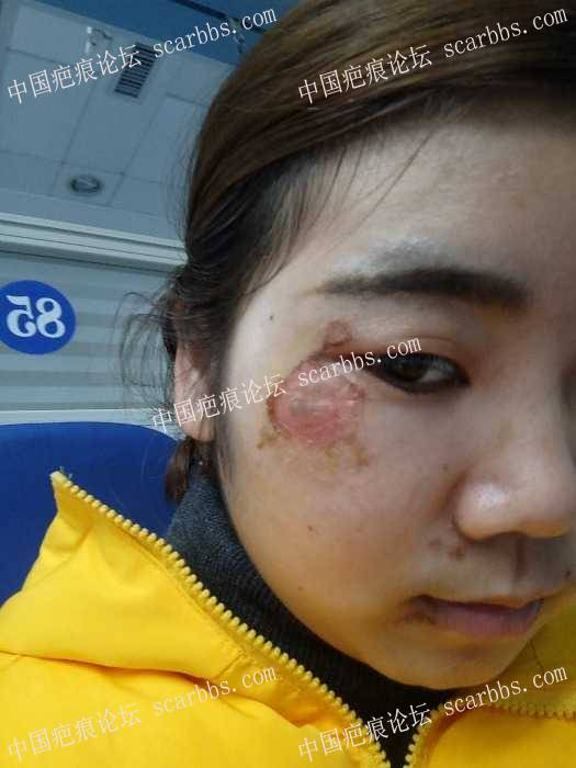 脸部擦伤两周了,我该怎么办?9-疤痕体质图片_疤痕疙瘩图片-中国疤痕论坛