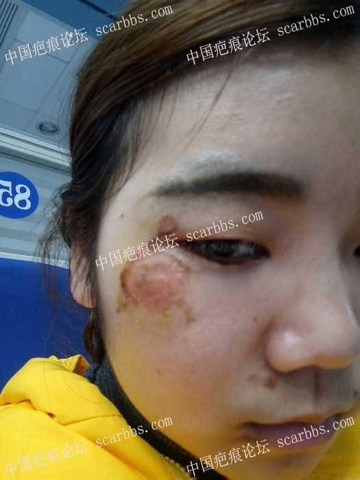 脸部擦伤两周了,我该怎么办?23-疤痕体质图片_疤痕疙瘩图片-中国疤痕论坛