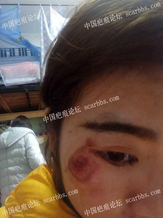 脸部擦伤两周了,我该怎么办?78-疤痕体质图片_疤痕疙瘩图片-中国疤痕论坛