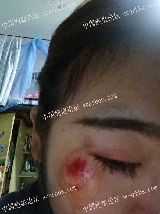 脸部擦伤两周了,我该怎么办?28-疤痕体质图片_疤痕疙瘩图片-中国疤痕论坛