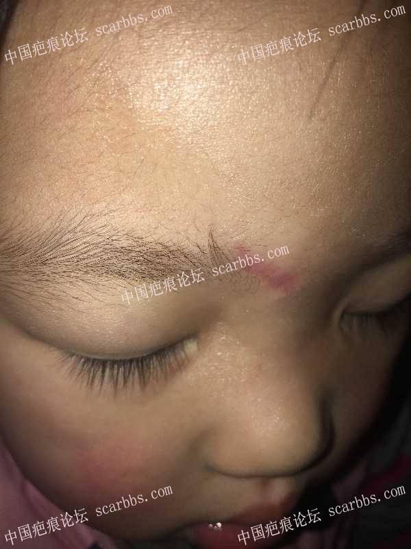宝宝摔伤眉心部位两个月了