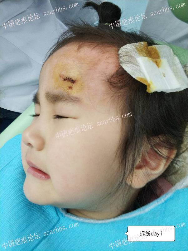 宝贝1.7额头磕着暖气片缝6针,疤痕后续护理 额头磕伤,缝针疤痕,记录护理,