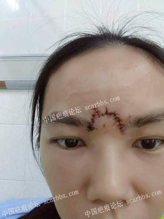 四天前摔伤眉头部求护理经验5-疤痕体质图片_疤痕疙瘩图片-中国疤痕论坛