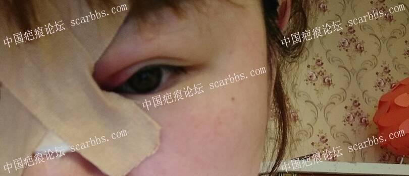鼻梁上的疤痕3月20号做的切除