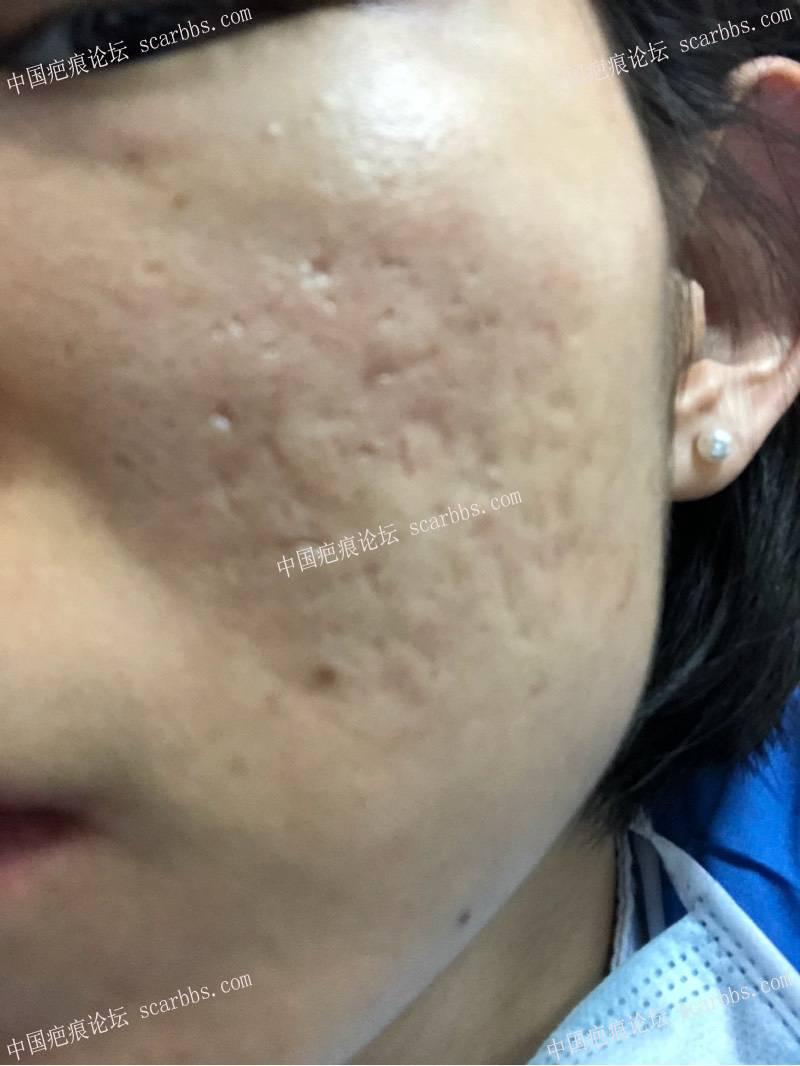 3月22日天津姚教授痘坑切缝,希望有好结果7-疤痕体质图片_疤痕疙瘩图片-中国疤痕论坛