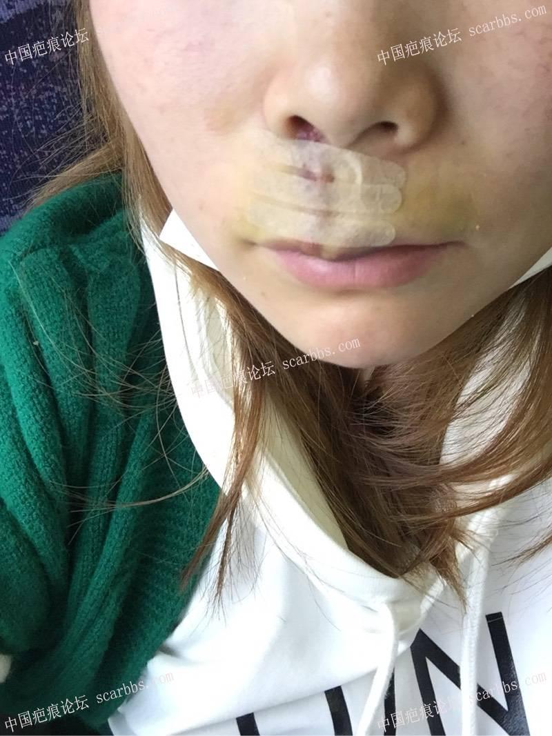 人中部位的凹陷疤痕在杨教授那边治疗了74-疤痕体质图片_疤痕疙瘩图片-中国疤痕论坛