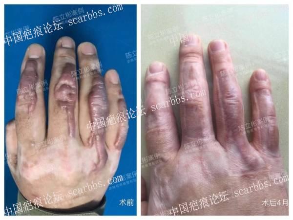 右手背烧烫伤后增生性疤痕,术后4个月复诊记录