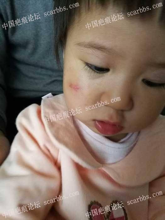 宝宝脸上磕伤,刚拆线,走上抗疤之路