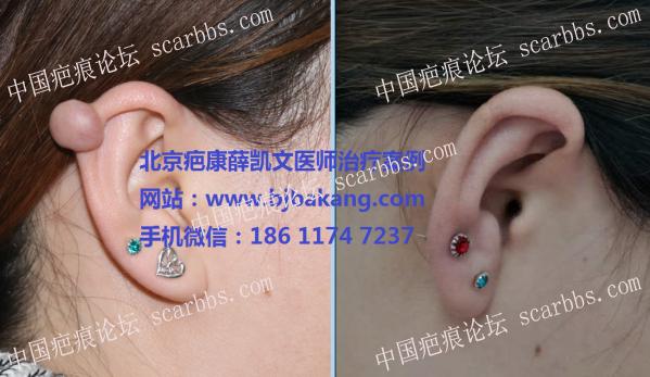 2018的愿望,去掉耳廓疤痕疙瘩,希望有人与我一起交流70-疤痕体质图片_疤痕疙瘩图片-中国疤痕论坛