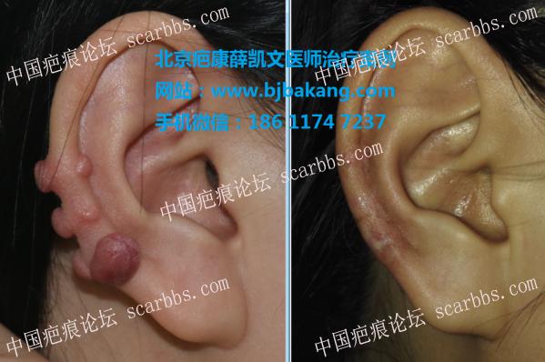 2018的愿望,去掉耳廓疤痕疙瘩,希望有人与我一起交流38-疤痕体质图片_疤痕疙瘩图片-中国疤痕论坛