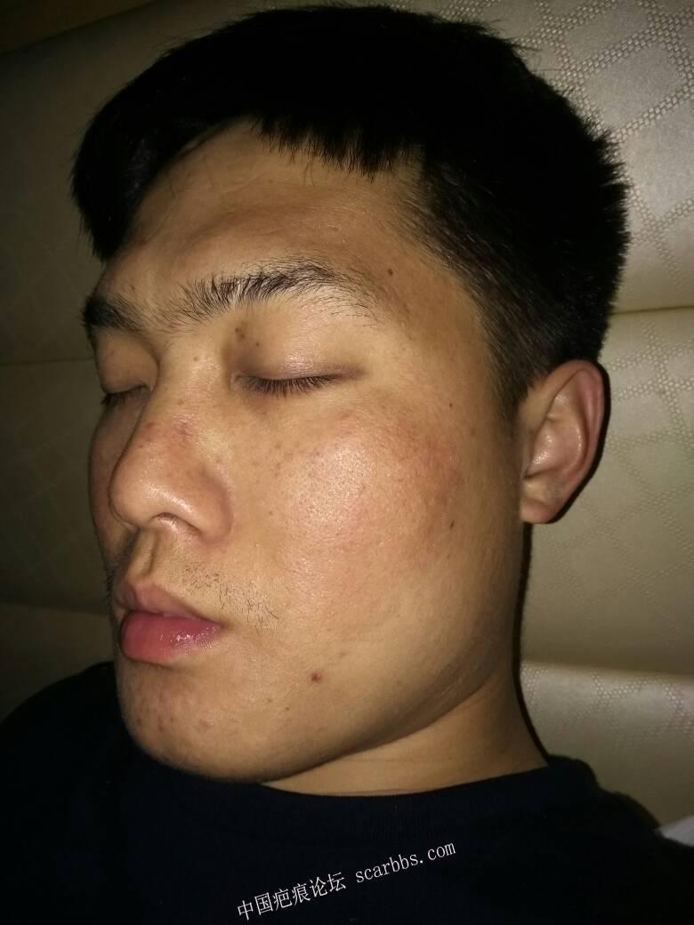 鼻子上的凹陷疤痕,做了磨削还是留疤了,如何治疗?