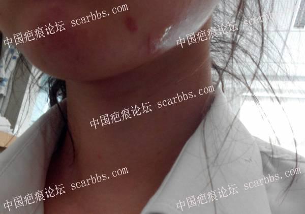 湖南省中医药研究院附属医院美容科是骗子黑心祛疤医生30-疤痕体质图片_疤痕疙瘩图片-中国疤痕论坛