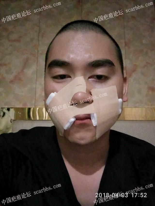 4月3号上嘴唇手术,期待有好的效果