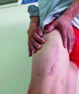 但是大腿有疤痕,可以做吸脂塑形吗?有影响吗?张清峰