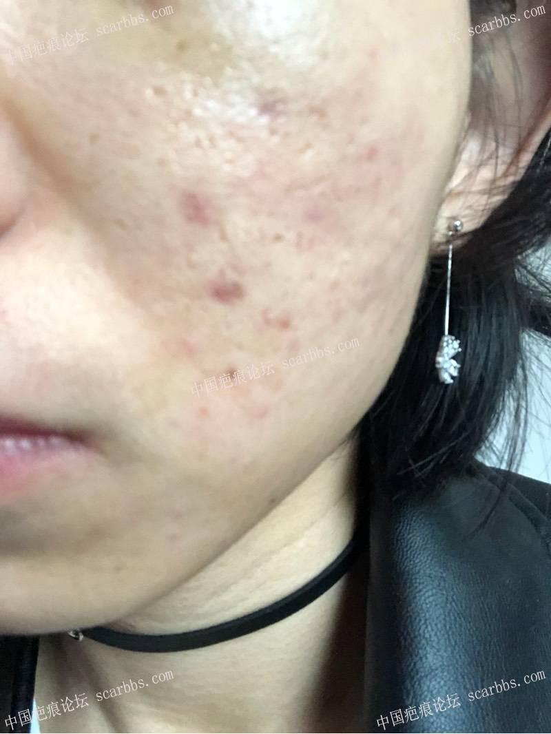 3月22日天津姚教授痘坑切缝,希望有好结果6-疤痕体质图片_疤痕疙瘩图片-中国疤痕论坛