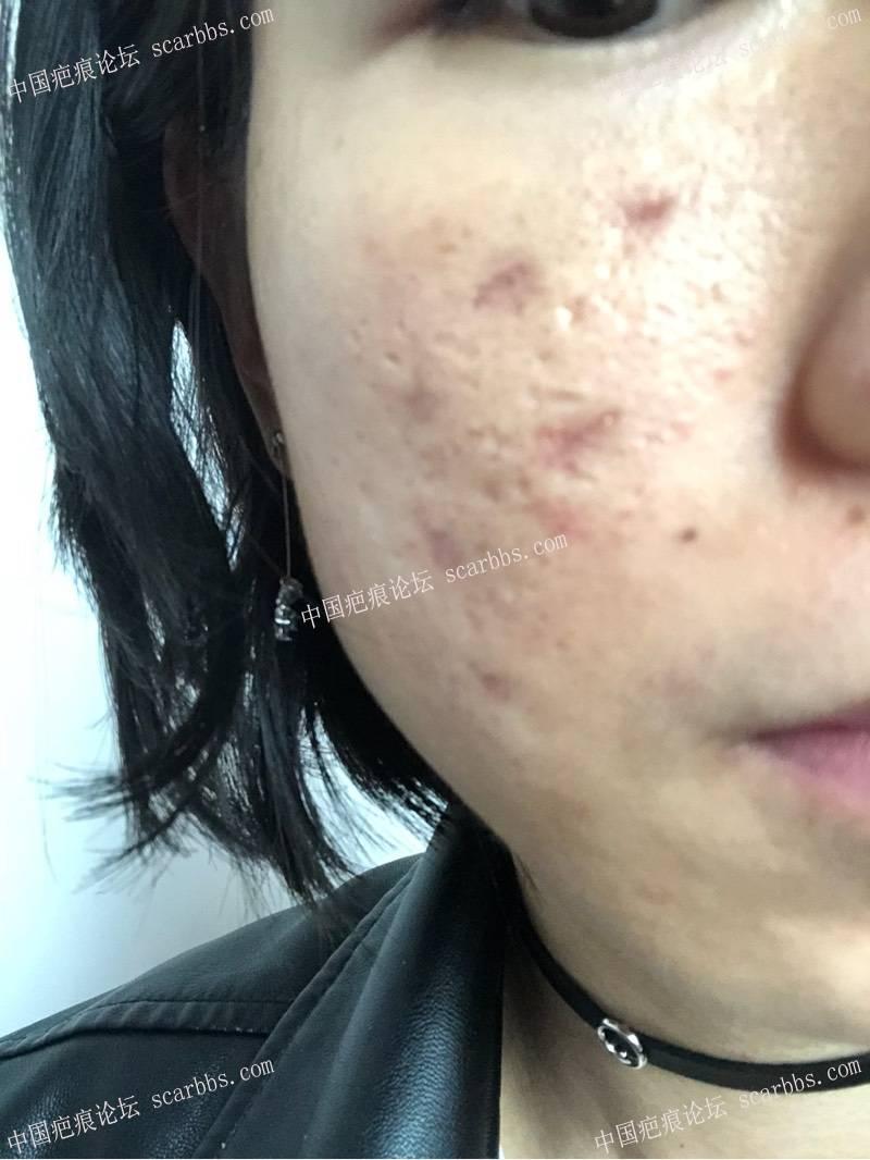 3月22日天津姚教授痘坑切缝,希望有好结果0-疤痕体质图片_疤痕疙瘩图片-中国疤痕论坛