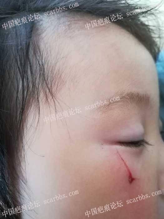 宝宝被易拉罐划伤眼下面,没有缝合,