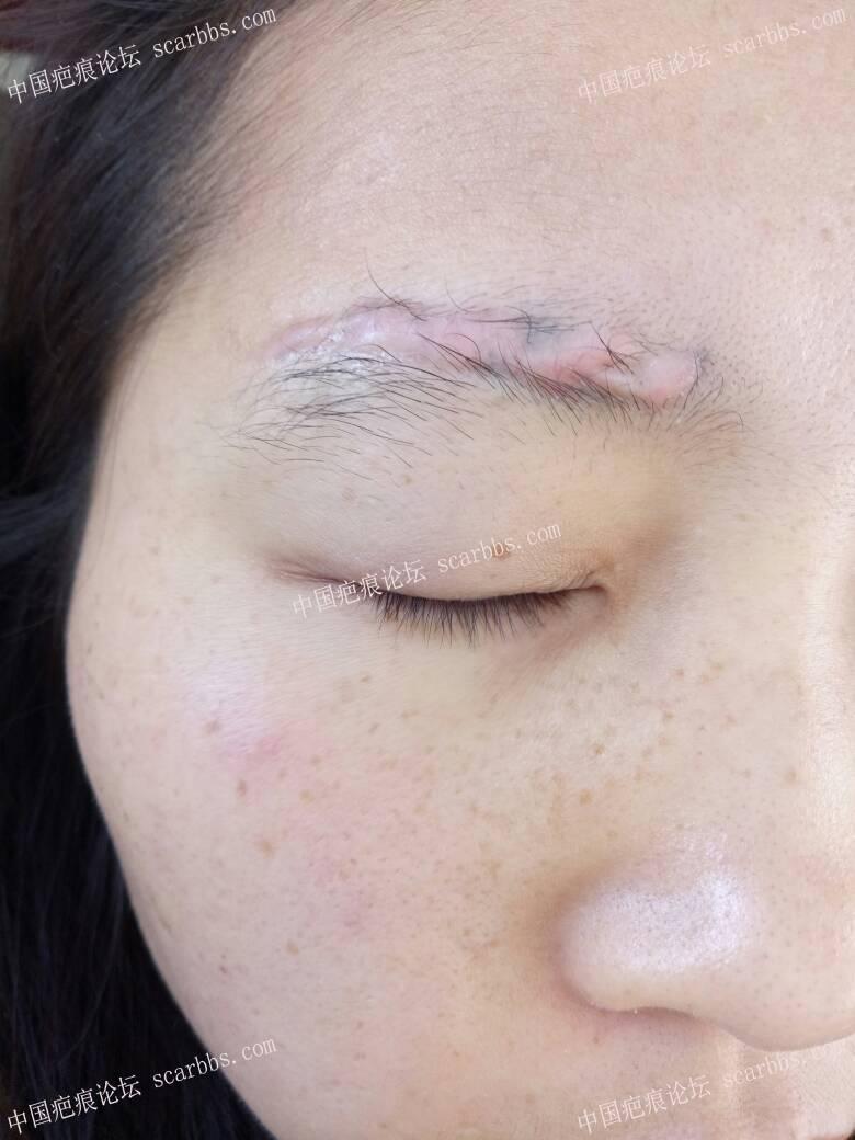 激光洗眉感染,留疤增生了