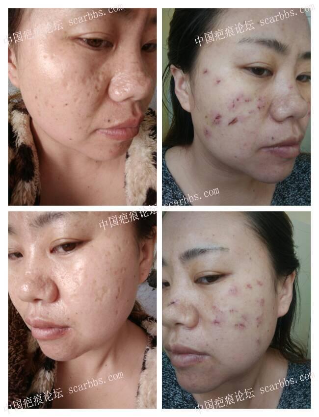 痘坑切除,今天刚拆的线,给大家看看我的对比图26-疤痕体质图片_疤痕疙瘩图片-中国疤痕论坛