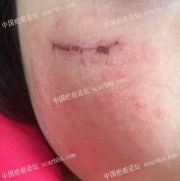 宝贝脸部摔伤,漫漫抗疤路,与宝贝同前行 脸部摔伤,缝针疤痕,记录抗疤