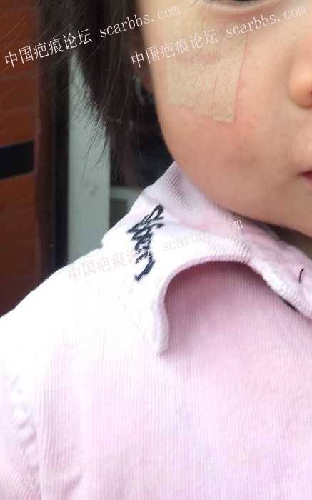 宝贝脸部摔伤,漫漫抗疤路,与宝贝同前行 脸部摔伤,缝针疤痕,记录抗疤,