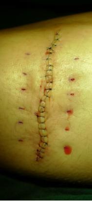 凹陷疤痕切缝手术反馈